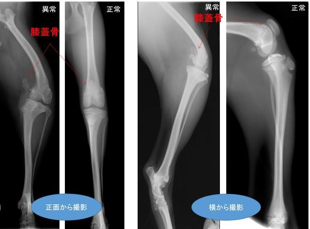 膝蓋骨内方脱臼(グレードⅣ)